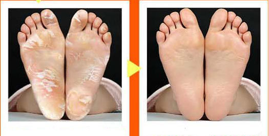 Foot peeling renewal mask remove dead skin foot skin smooth foot peeling renewal mask remove dead skin foot skin smooth exfoliating feet mask foot care ccuart Gallery