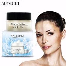 APINKGIRL חזק אפקטים עוצמה הלבנת נמש קרם להסיר Melasma כתמי אקנה פיגמנט מלנין כהה כתמים פנים טיפול קרם