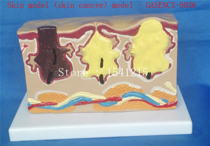 Human body model Medical model Skin model (skin cancer) teaching model - GASENCX-0036 hot skin section model human skin structure model skin model