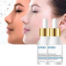 Acne Treatment Remove Acne