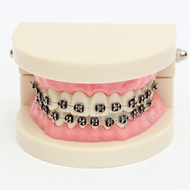 1 Modelo de Enseñanza Dental Flesh Pink Gomas Estándar Dientes con brackets  Ties c0d09557e05a
