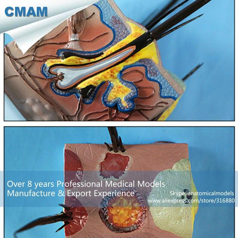 CMAM A10 Dog Skin Pathological Anatomical Models for veterinarian\'s ...