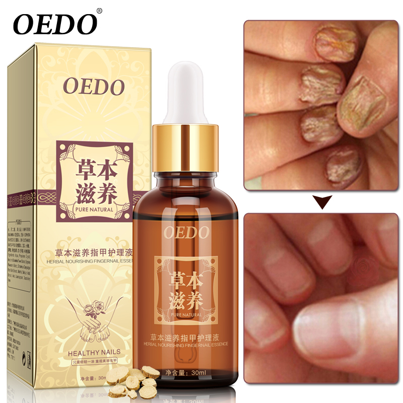 Herbal Fungal Nail Treatment Eterisk olja Hand och fot Whitening Toe Nail Svamp Avlägsnande Infektion Fotvård Polska Nail Gel