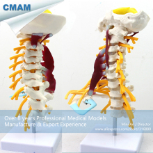 CMAM-VERTEBRA02 Human Cervical Vertebral Column Deluxe Skeleton Model,  Medical Science Educational Teaching Anatomical Models