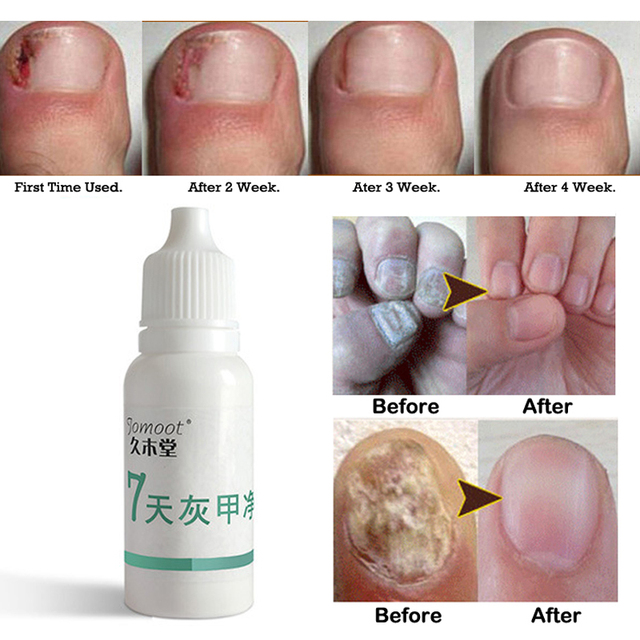 Nail Problems Treatment Onychomycosis Repair Gentle And Effective ...