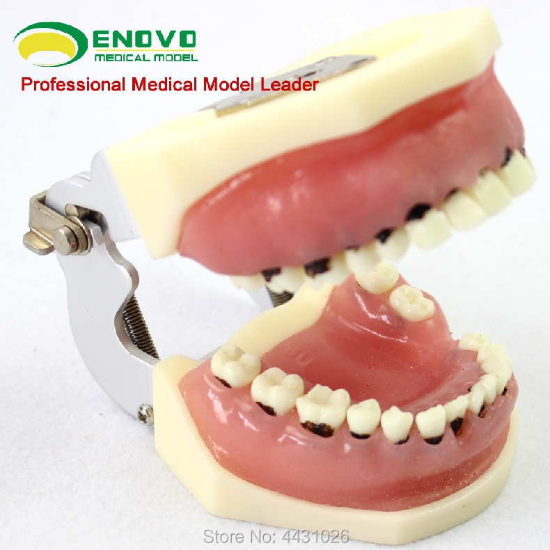 ENOVO Dental calculus of severe periodontal disease model of dental calculus salas calculus one
