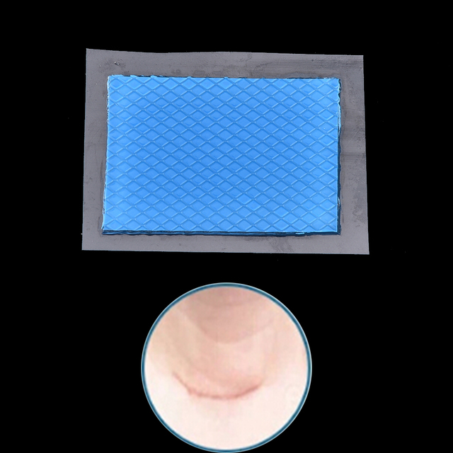 1pc Silicone Scar Removal Patch Acne Gel Therapy Reusable Silicon Patch 5cmx3.5cm Remove Trauma Burn Sheet Skin Repair 4
