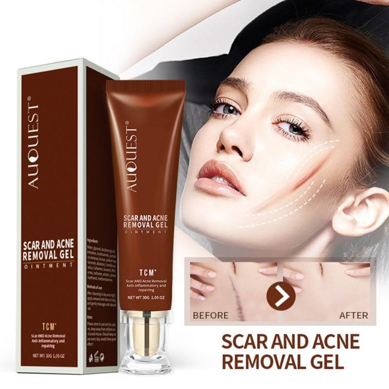 ce9d390a1b9ac ندبة إصلاح كريم بسرعة إزالة جميع أنواع ندبات بثرة علامات الجلد الرعاية  الضروري كريم تأثير كبير
