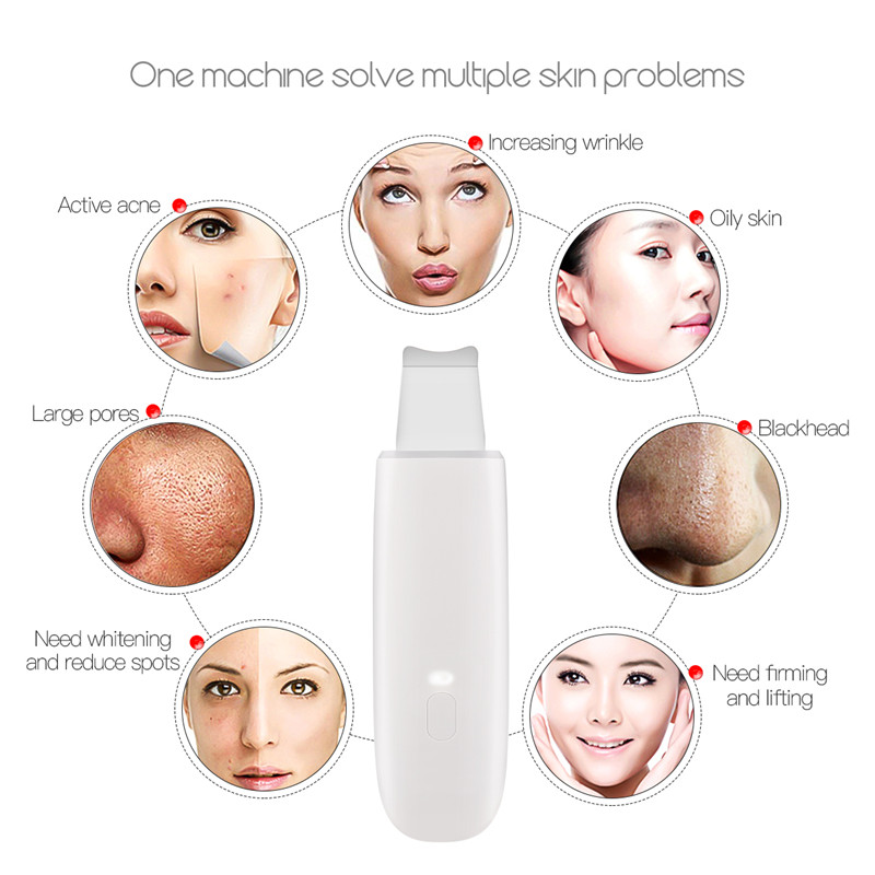 Ultrasonic Skin Scrubber Facial Cleaner Peeling Lifting Vibration Blackhead Removal Exfoliating USB Rechargeable Face Care Tool