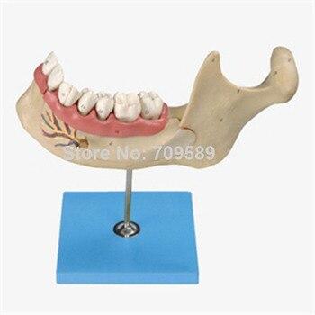Lower Jaw of 18-year-old,  Dentition Model, Teeth Model