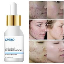 Argireline Hyaluronic Serum Six Peptides AntiAging Wrinkle Whitening Cream Acne Treatment Skin Face Cream Scar Removal Essence