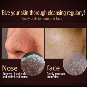 Image 4 - MEIKING פנים טיפול יניקה הבהרת מסכת פנים מסכת אקנה טיפול האף חטט אקנה טיפולי לקלף מסכת לחות