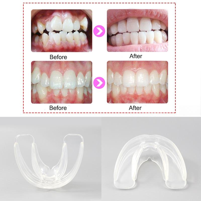 Orthodontic Braces Dental Braces Smile Teeth Alignment Trainer Teeth Retainer Mouth Guard Braces Tooth Whitening Myobrace
