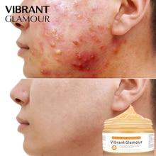 VIBRANT GLAMOUR Salicylic acid Acne Face Mask face creamTreatment Acne Oil Control Moisturizing Pigmentation Corrector Skin Care