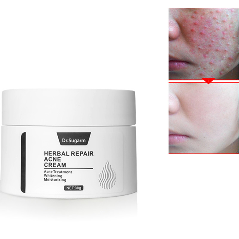 Dr Sugarm Herbal Repair Acne Face Cream Skin Care Acne Treatmnet Whitening Moisturizing Shrink Pores Plant Extract Day Cream 30g in Facial Self Tanners Bronzers from Beauty Health
