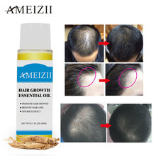 AMEIZII 20ML Hair Growth Essence Hair Loss Products Essential Oil Organic Natural Ginger Extract Dense Hair Care Growth Serum
