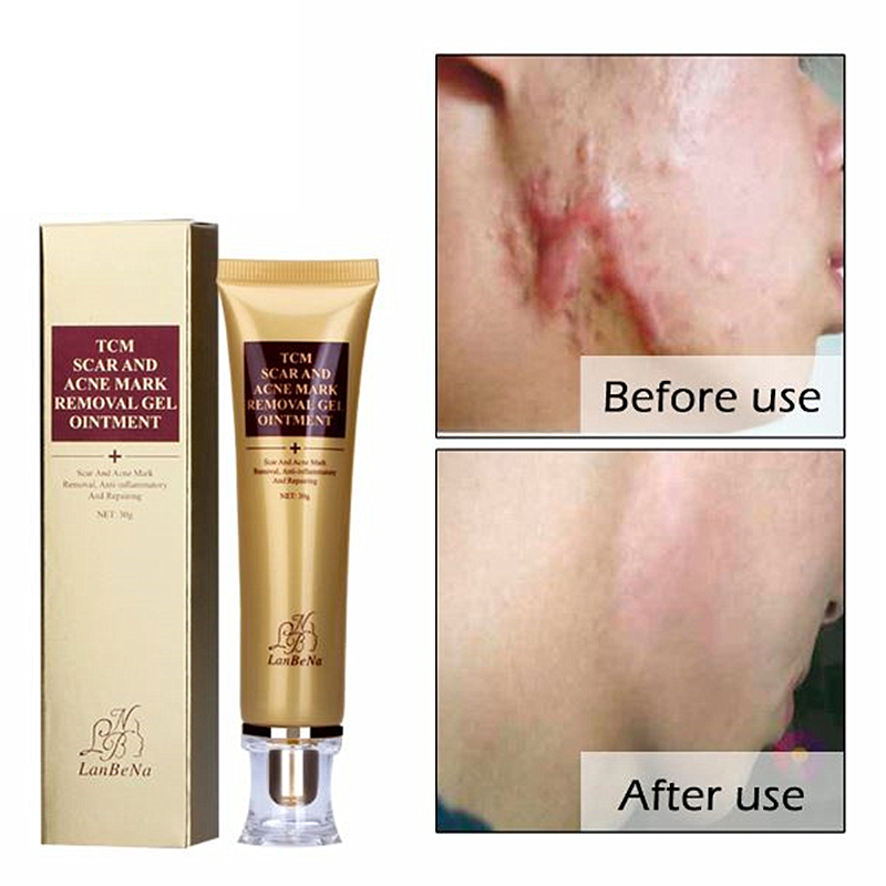 LANBENA ginseng extract against black dots cream scar removal facial blackhead acne skin care treatment bleaching cream 30ml
