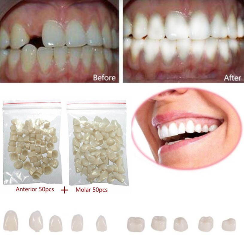 2 Packs Dental Materials Mixed Temporary Crown Posterior Veneers