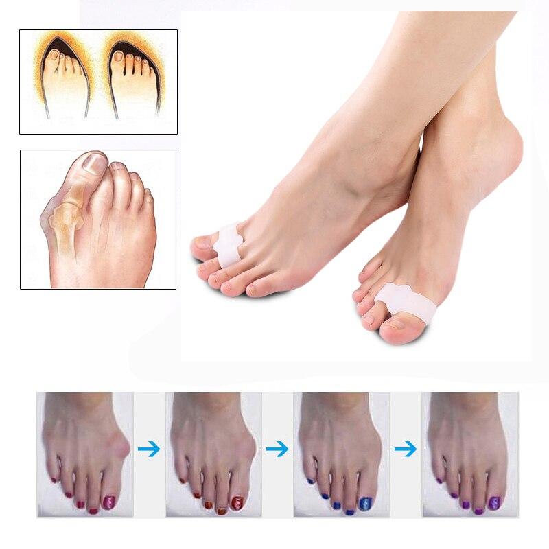 1Pair Alat za njegu stopala Thumb Night Koristi Pedikuru Dnevnog - Alat za njegu kože - Foto 6