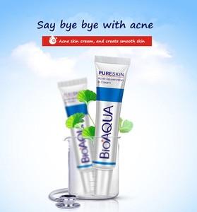 Image 2 - BIOAQUA crema Facial hidratante para el cuidado de la piel, crema para el acné con estampado de cicatrices, belleza pura