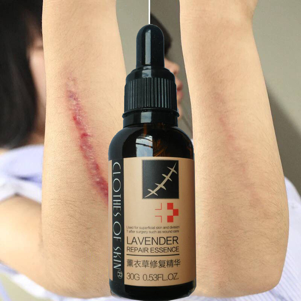top 10 largest lavender oil for scars list and get free