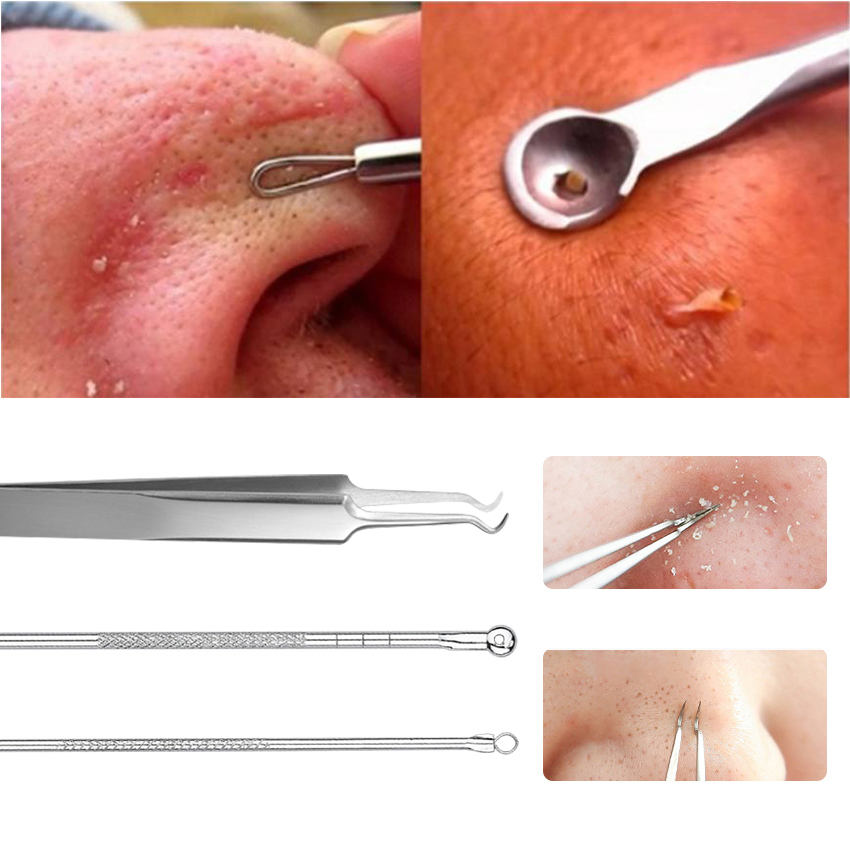 3pcs Acne Tweezer Stainless Blackhead Facial Acne Spot Pimple Remover Comedone Extractor New Arrival Extractor Tool Comedone Set