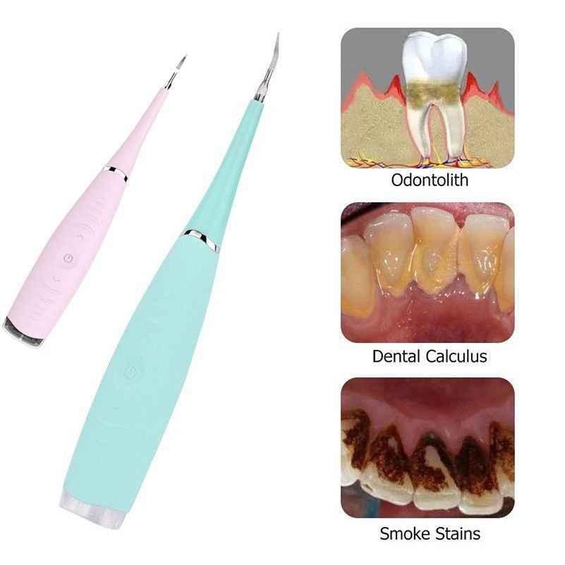 Электрическая звуковая зубные масштабирования зуб Calculus Remover пятен зубов приспособление для Тартара стоматолог Отбеливание зубов Гигиена здоровья белый