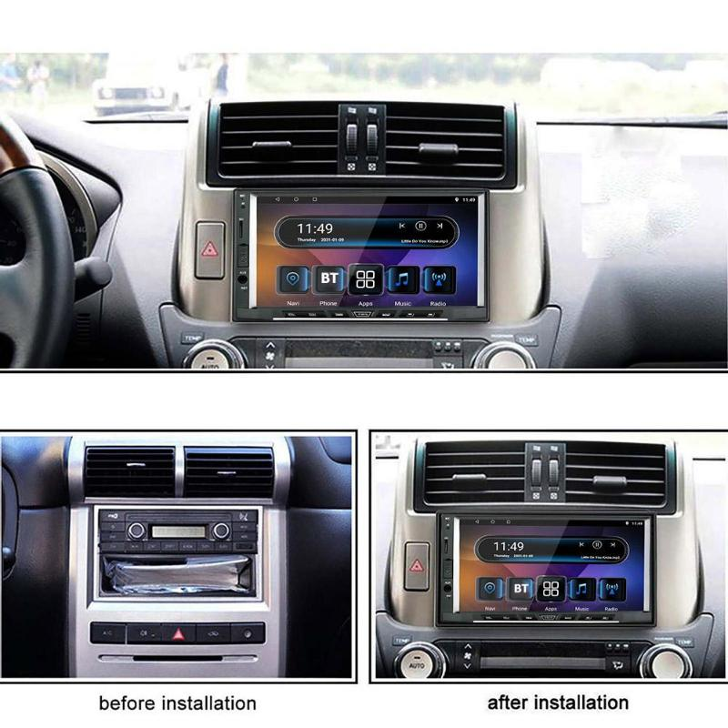 car  radio Support 15