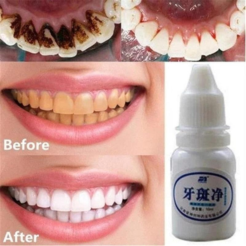 1PCS Teeth Whitening Gel Quick Effect To Yellow Dental Plaque Mouth Cleaning Liquid Whitening Dental Bleaching Tools