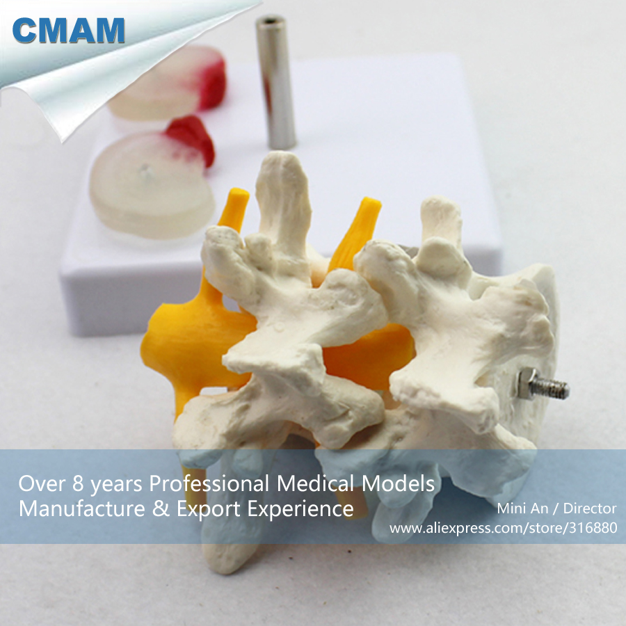 12391 CMAM-VERTEBRA07 Lumbar Intervertebral Disc Herniation Model,  Medical Science Educational Teaching Anatomical Models 12569 cmam dental10 cranial nerve model in oral cavity medical science educational dental teaching models
