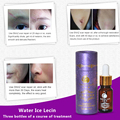 Face Care Scar Removal Cream Acne Spots Skin Care Treatment Stretch Marks Whitening Remove Acne Face Essential Oil