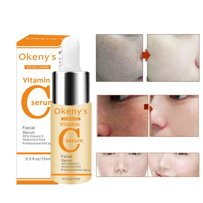 Beauty Vitamin C Face Anti Winkles Essence Serum VC Removing Dark Spots Freckle Speckle Fade Ageless Whitening Skin Care