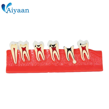 1 Piece Dental Teeth Model for Caries Pathology Illustration Teaching and Dentist-patient Communication