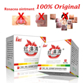 Rosacea Ointment, Red Nose Ointment, Acne Cream Skin Care Chinese Herbal Anti Acne And Mite Acne Rosacea Red Nose