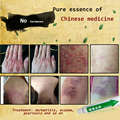 Acute and chronic itching skin itching and allergic dermatitis and eczema damp
