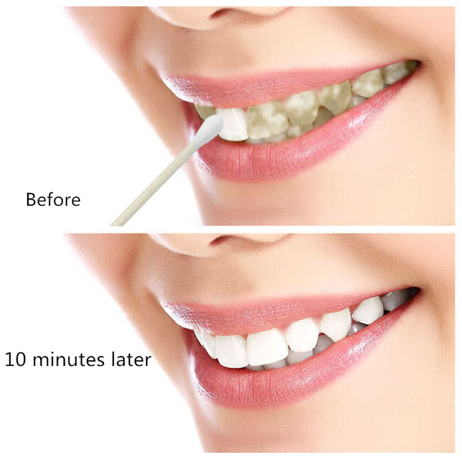 EFERO Teeth Whitening Serum Gel Dental Oral Hygiene Effective Remove Stains Plaque Teeth Cleaning Essence Dental Care Toothpaste 3