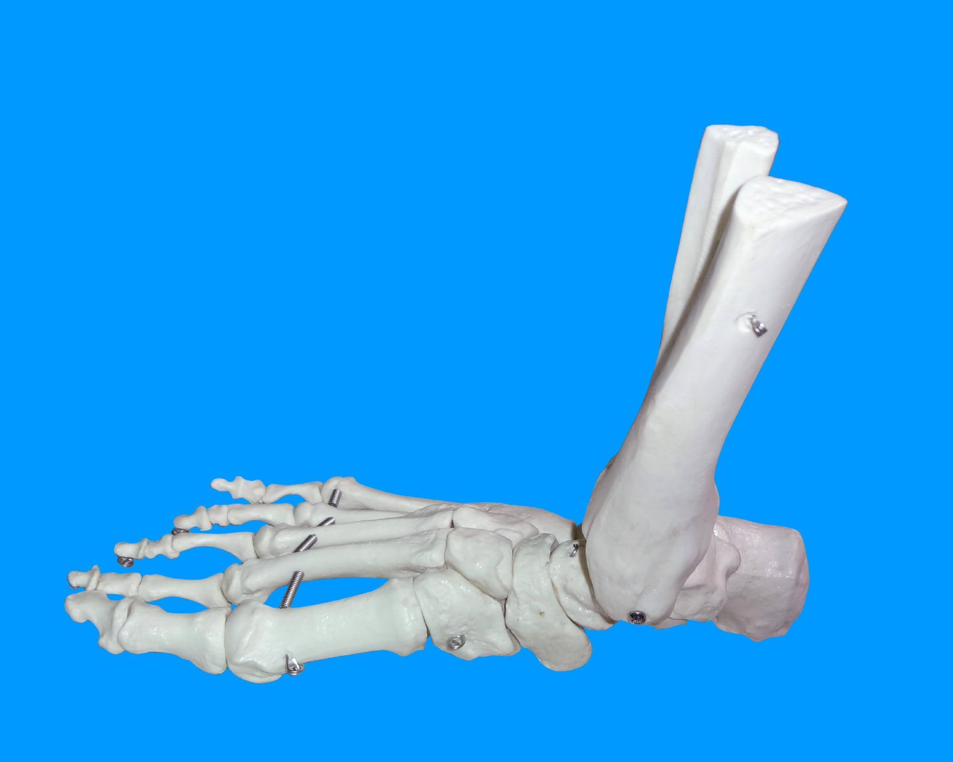 1:1 Human Foot Joint Ankle Joint Bone Model Medical Anatomy Skeleton Model Teaching Tool Supplier