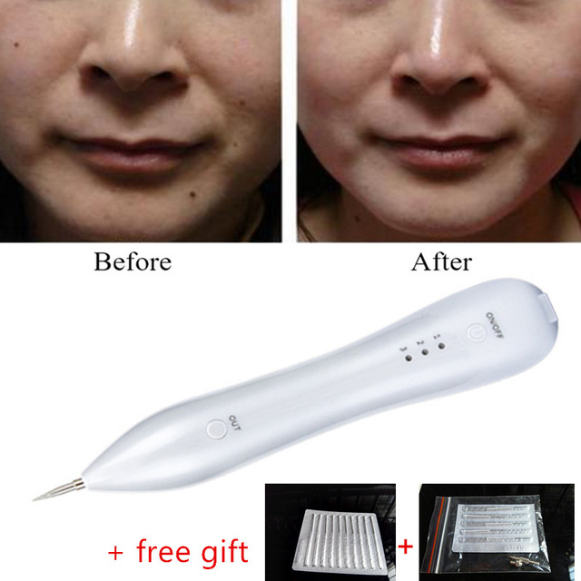 Warts removal machine Skin Care Laser Mole Freckle Removal Pen Tool ...