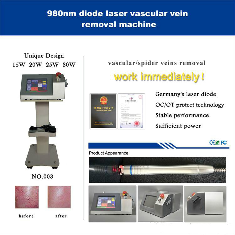 30W Available Diode 980nm Portable Vascular Blood Vessel Spider Vein Removal Machine 980 Nm Laser Vascular Removal