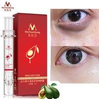 Anti Puffiness Black Dark Circle Remover Anti Aging Ageless Eye Cream Advanced Repair Eye Creams Moisturizing