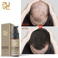 PURC Hot Sale 20ml Fast Hair Growth Essence Oil Professional Hair Loss Treatment Help For Hairs Grow