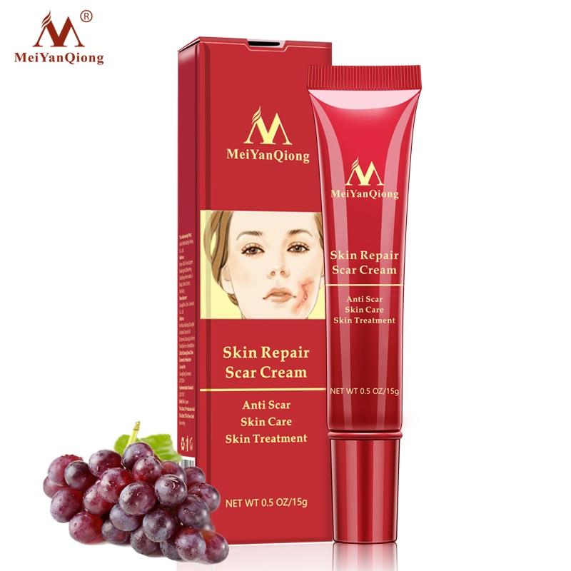 Meiyanqiong  Acne Scar Removal Cream Skin Repair Face Cream Acne Treatment Stretch Marks Treatment Maternity Repair Cream