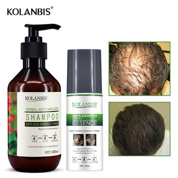 Hair Loss Treatment Kit Oily Growth Fast Serum Hair Loss Shampoo Men Baldness Thickening Product Alopecia Restoration Anti Fall