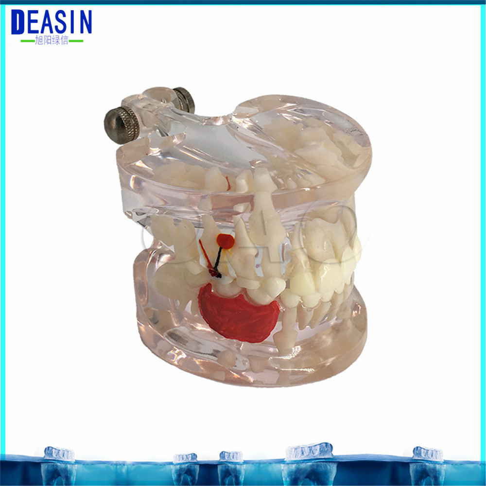 Dental Implant Teeth Dental Pathological Teeth Implant Model Teaching Teeth Model & Restoration Bridge Tooth demonstration dental study tooth transparent adult children pathological teeth model lab equipment dentist teaching