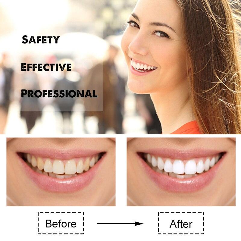 Clareamento Dos Dentes Kit Com 16 Gel De Clareamento Dentes