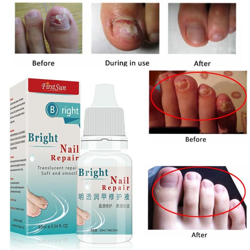 Powerful Fungus Nail Treatment Cream Onychomycosis