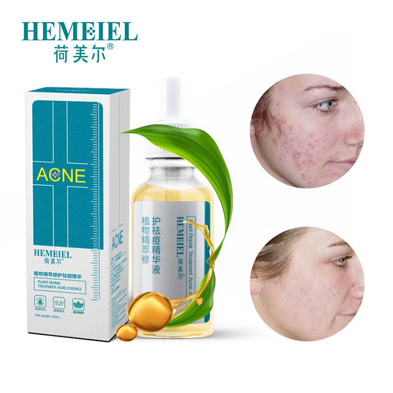 hemeiel-natural-plant-anti-acne-serum-moisturizing-face-serum-skin-care-acne-treatment-repair-serum-herbal-shrink-pores-essence