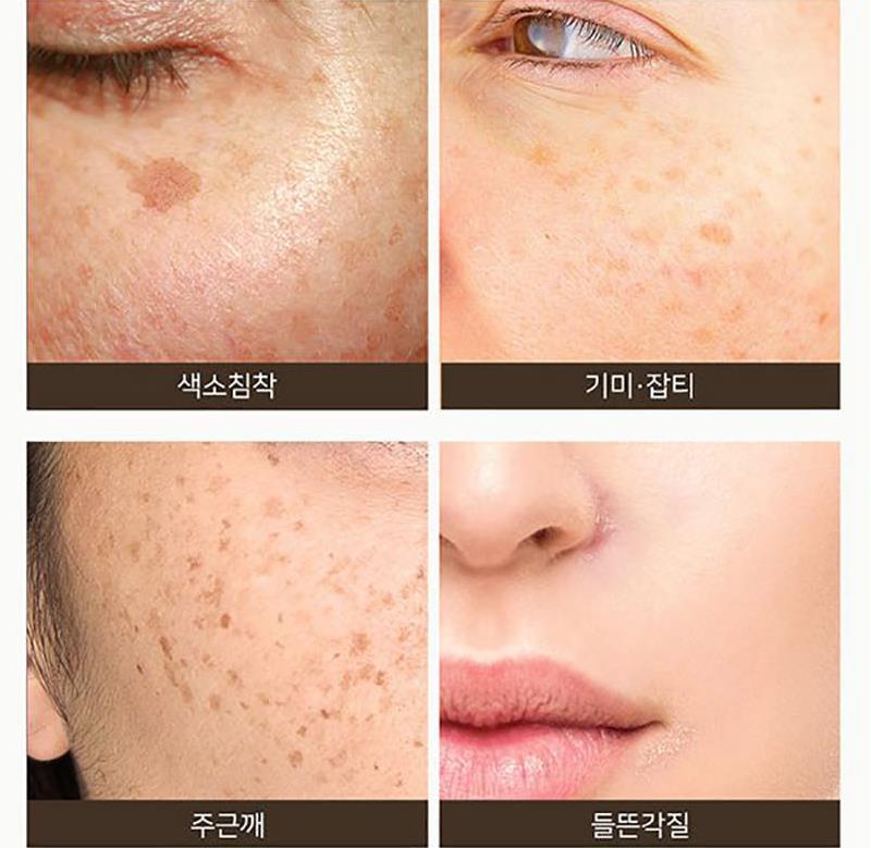 SOME BY MI Galactomyces Pure Vitamin C Glow Serum 30ml Facial Serum  Freckles Blackhead Removal Face Exfoliator Whitening Essence| | - AliExpress