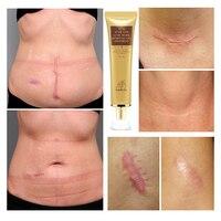 LANBENA Acne removal of Scar Cream Scar Gel Skin Repair Face cream Acne Sponges Acne Treatment Skin Care Whitening Stretch marks