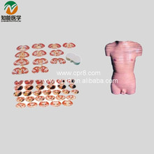 Human Body Model (Male Transverse Section Model ) BIX-A1070 WBW381